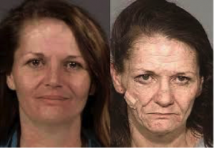 Meth Health Effects before - after